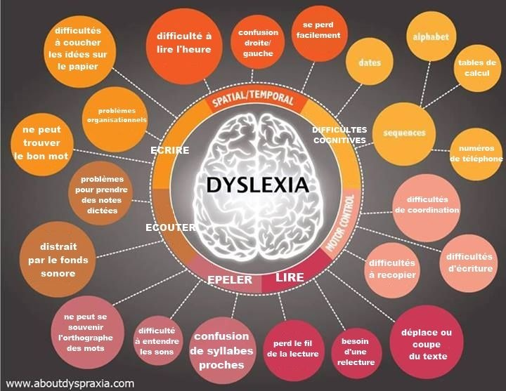diagnosis of students with dyslaxia and Dyslexia signs in teens and adults are similar to those in children some common dyslexia signs and symptoms in teens and adults include: difficulty reading, including reading aloud.